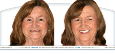 Dentures Before and After at Smile Columbia in Columbia, South Carolina