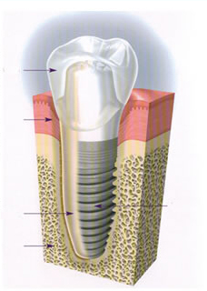 diagram of a dental implant in Columbia, South Carolina