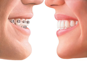 traditional braces compared to clear, Invisalign braces