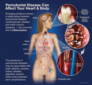 Gum disease threatens your overall health and requires periodontal therapy