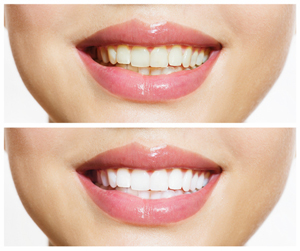 Teeth whitening should only be performed by dentists