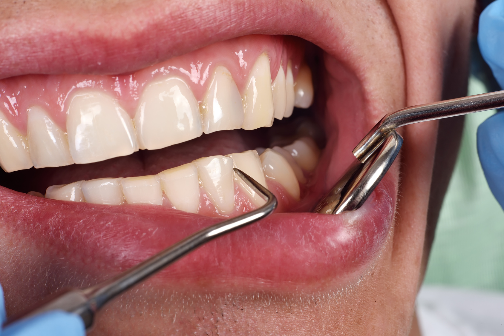 South Carolina In The Top 10 For Gum Disease