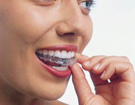 A woman putting her Invisalign orthodontic appliance on her teeth