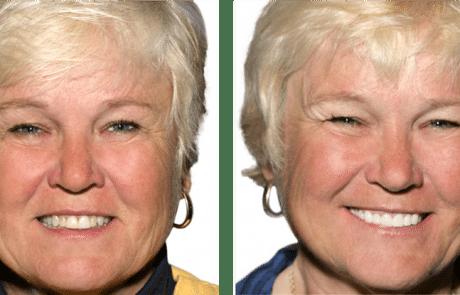 Zirconia Implants May Be More Attractive
