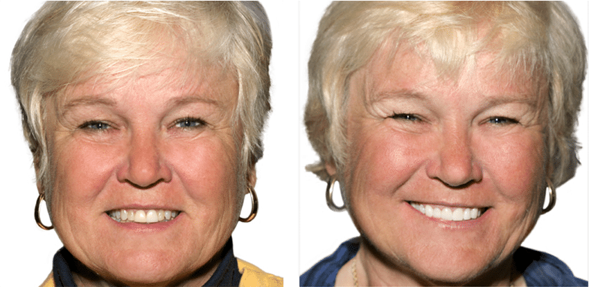 A before and after of a patient who recieved Zirconia implants