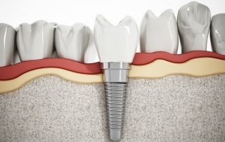 Why Are Dental Implants So Popular?