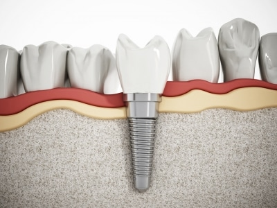 A diagram of a dental implant