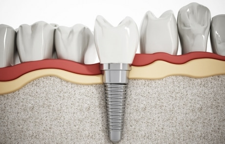Why Are Dental Implants So Popular