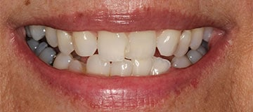 Woman's uneven smile, showing gaps