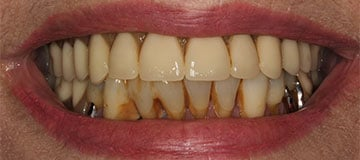 Before closeup view of a patient smile showing decayed teeth