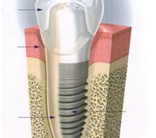 Why Choose Zirconia Implants Over Titanium