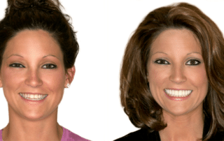 A Smile Makeover Just for You | Dentist Columbia SC