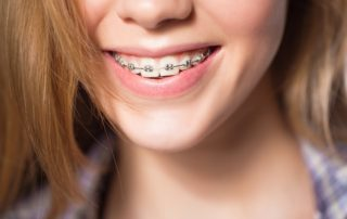 How to Floss with Braces | Dentist Columbia SC