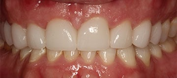 A closeup of a newly improved smile thanks to Dr. Adam Hahn