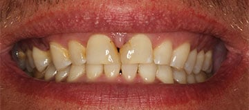 Close up of a smile showing shortened teeth