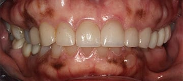 Closeup of a female dental patient of Dr. Hahn after improving her smile