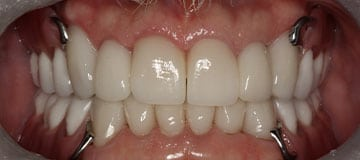Healthy smile with white teeth
