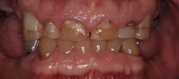 Discolored smile with shortened teeth