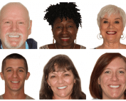 Choose Your Smile with Veneers