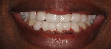 Closeup of a female's smile showing white teeth