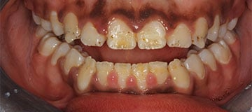 closeup of a worn smile with decayed, yellow teeth