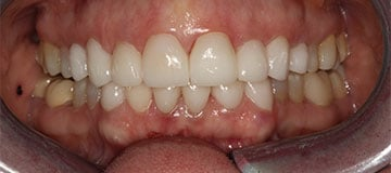 A closeup of an improved smile thanks to Dr. Adam Hahn in Columbia, SC