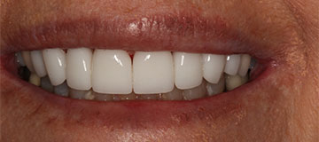 a closeup of a female's smile showing a whiter smile