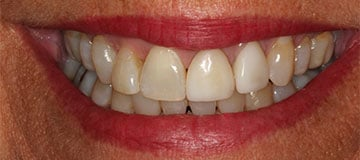 A closeup of a females smile showing discolored teeth