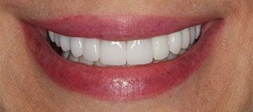 Happy, white smile closeup