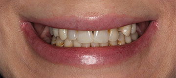Closeup of a female's smile showing gaps and discoloration