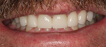 Closeup smile of a male patient of Dr. Hahn showing improved teeth