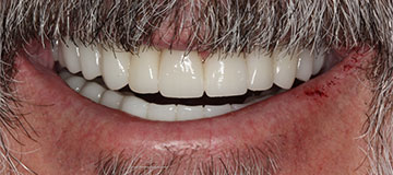 man's improved smile with white teeth and an happy look