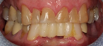 Closeup of a man's discolored, decay teeth