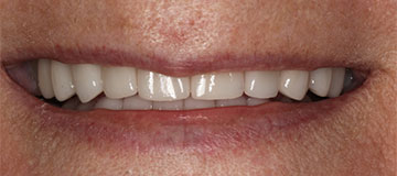 A woman's improved smile with whiter teeth and a more even bite