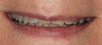 closeup of a woman's short, decayed smile