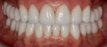 Closeup of a smile showing healthy gums and white teeth