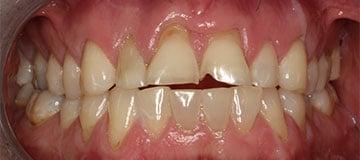 Chipped, broken teeth closeup