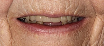 Older woman's smile with short teeth