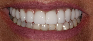 Closeup of a woman's new smile