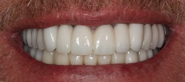 Closeup of a man's smile after treatment with Dr Hahn