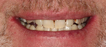 Closeup of a male dental patient before treatment with Dr. Hahn