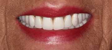 Female's smile showing healthy new smile thanks to Dr. Adam Hahn