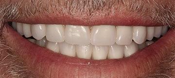 Male patient after dental treatment