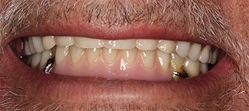 Male patient before dental treatment